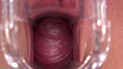 Outdoor Cervix | Download from Files Monster